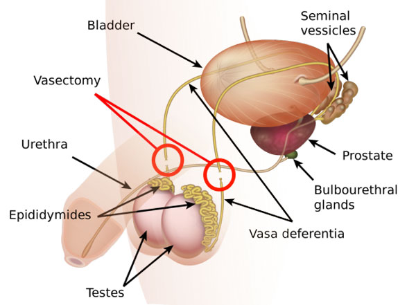 Vasectomy Surgery